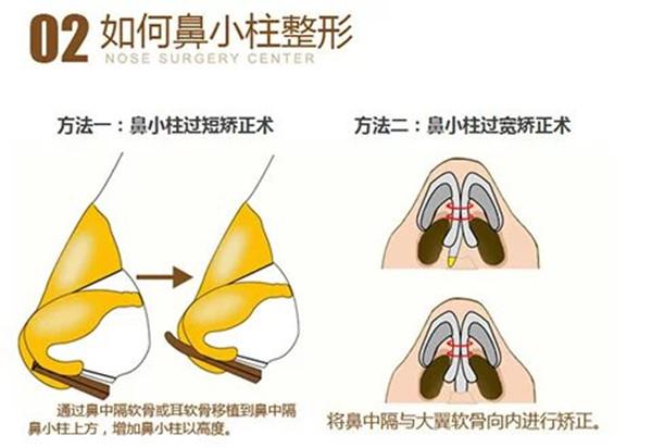 鼻小柱延长的方法以及术后注意事项