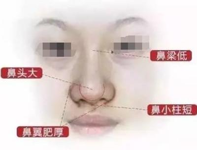 你知道吗? 隆鼻≠综合隆鼻 !那区别在哪?