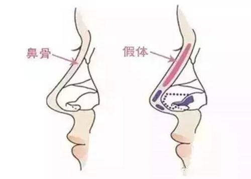 韩式假体隆鼻的切口有哪些?手术后多久能消肿?