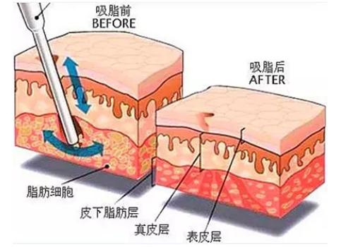 韩国腰腹吸脂手术效果